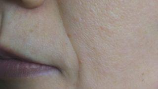 メディリフトを使用する前の肌