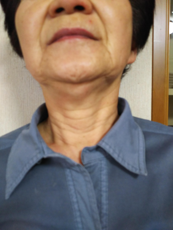 メディリフト試着に来た母のお友達